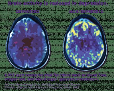 tms depression brain activity